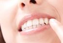 歯ぐきの腫れや出血が気になる方
